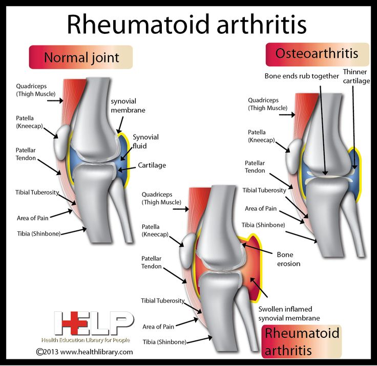 rheumatoid arthritis kps content only The 5 worst foods to eat if you have arthritis  no matter what your arthritis pain level and frequency, fill out the risk-free acceptance form below to see how .