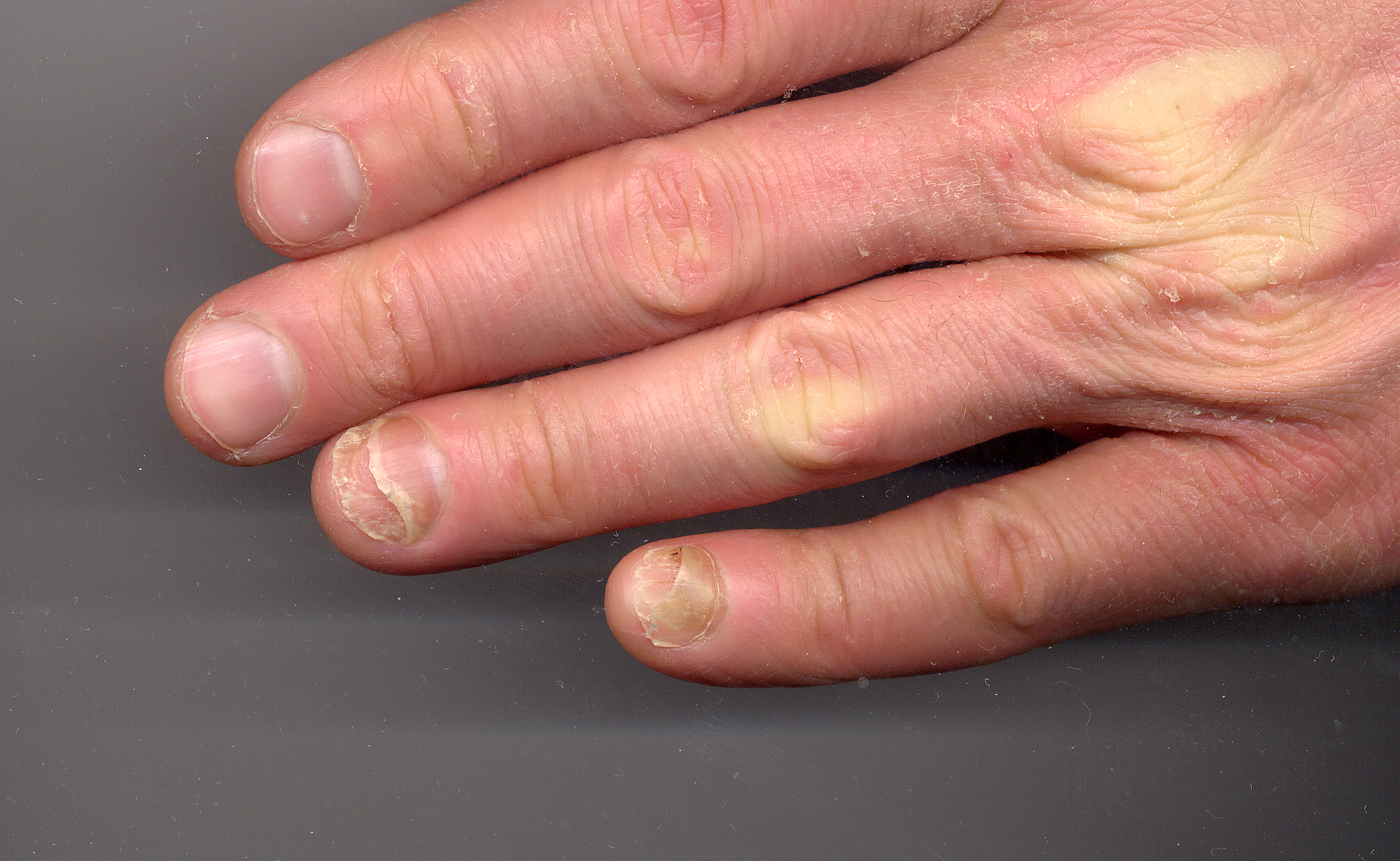Keep Getting Infection Ring Finger Nail